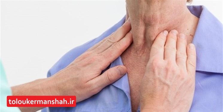 شیوع گواتر در کرمانشاه به کمتر از ۱۰ درصد رسیده است