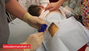 بیش از ۱۰۰ پیوند مغز استخوان در کرمانشاه انجام شد