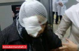 مصدومیت خانم ۲۲ ساله از ناحیه چشم در چهارشنبه سوری کرمانشاه