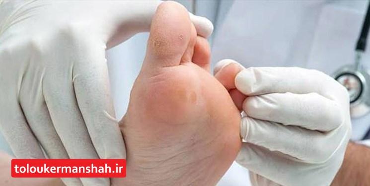 دستاورد متخصصان کرمانشاهی: ساخت پمادی گیاهی در درمان زخم پای دیابتی