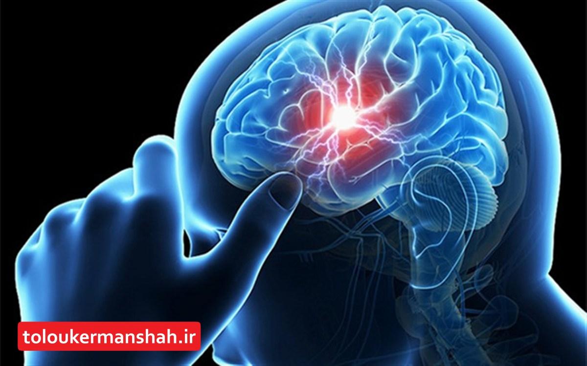 کاهش ملموس سن سکته مغزی در کشور