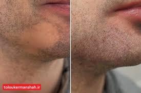 درمان خانگی قارچ ریش